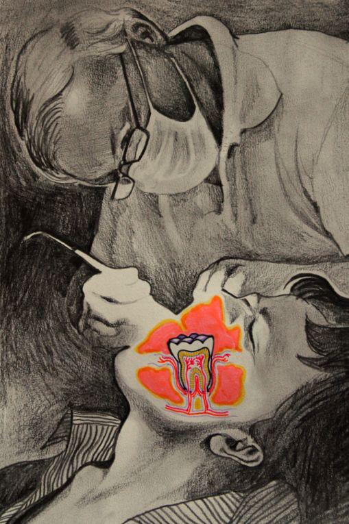 the dentist - pencil and markers on paper